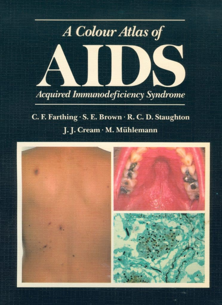 Wolfe Colour Atlas of AIDS cover