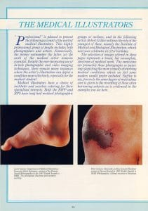 medical photography in the 1980s 'Professional' page 14